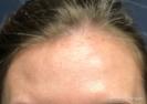 Botox (forehead)