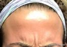 Botox (glabella)