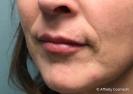 Filler (lips)